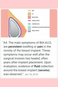 National Breast Implant Awareness Month - Graphic