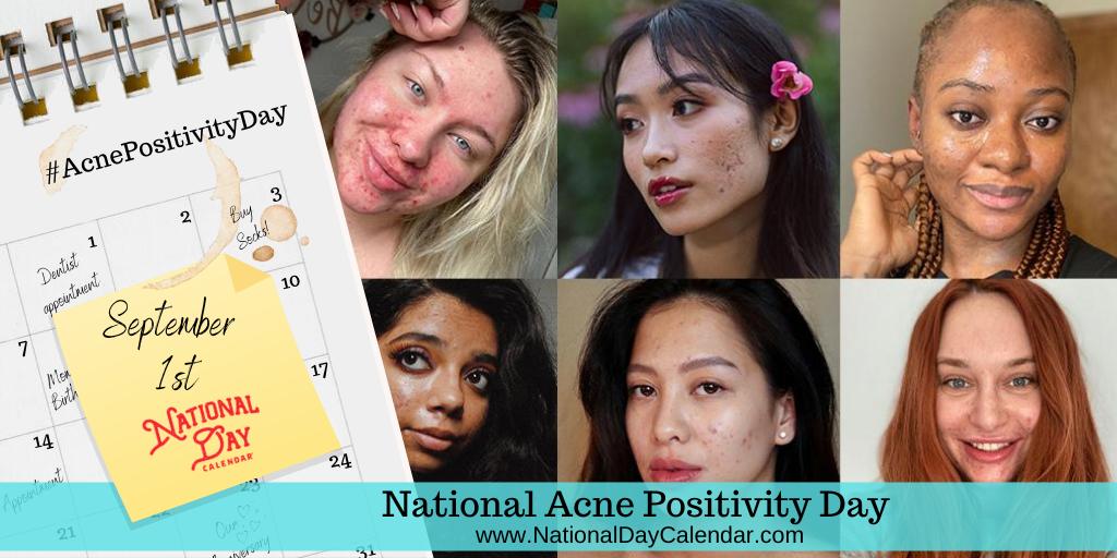 National Acne Positivity Day - September 1